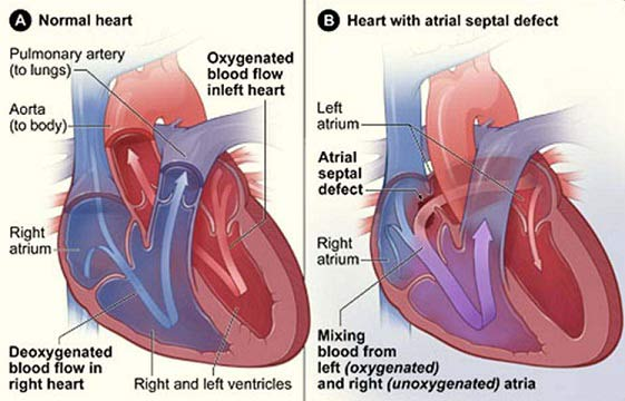 ASD Atrial Septal Defect - Hole in the heart